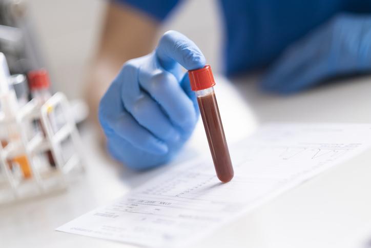 副作用を確認するため頻繁に血液検査を(写真:iStock)