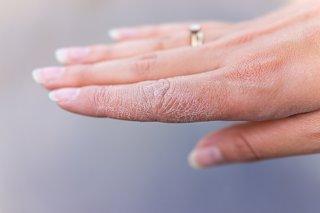 手荒れがつらい…症状別対策&ハンドクリームの正しい使い方