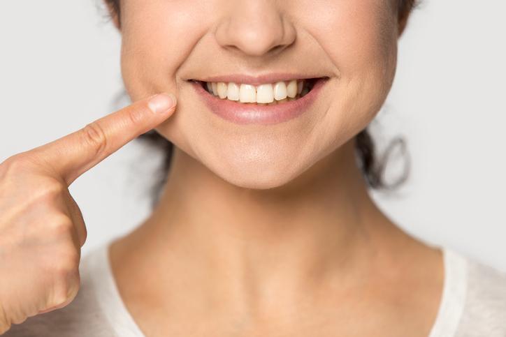 表情金を鍛えて毛穴にサヨナラ(写真:iStock)